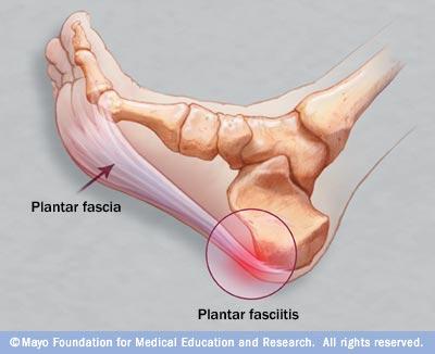 wpid-r7_fasciitis-2013-10-13-19-24.jpg